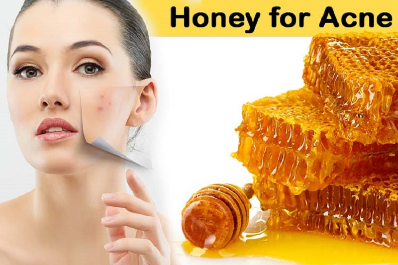 pimple treatment with honey