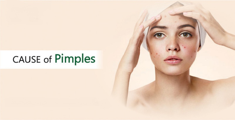 types and cause of pimples