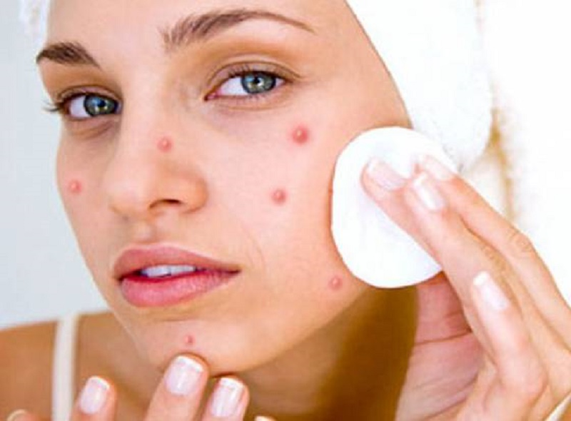 types of pimples on face