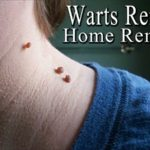 get rid of a warts