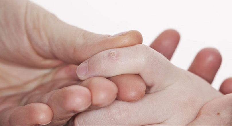 how to get rid of a warts