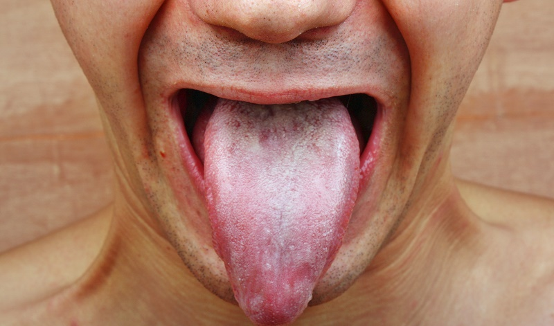 Tongue infections