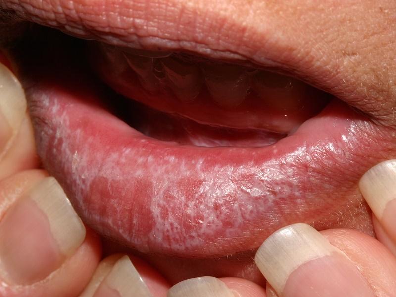 Lichen planus oral