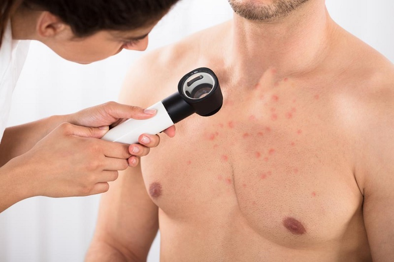 Acne in the Chest