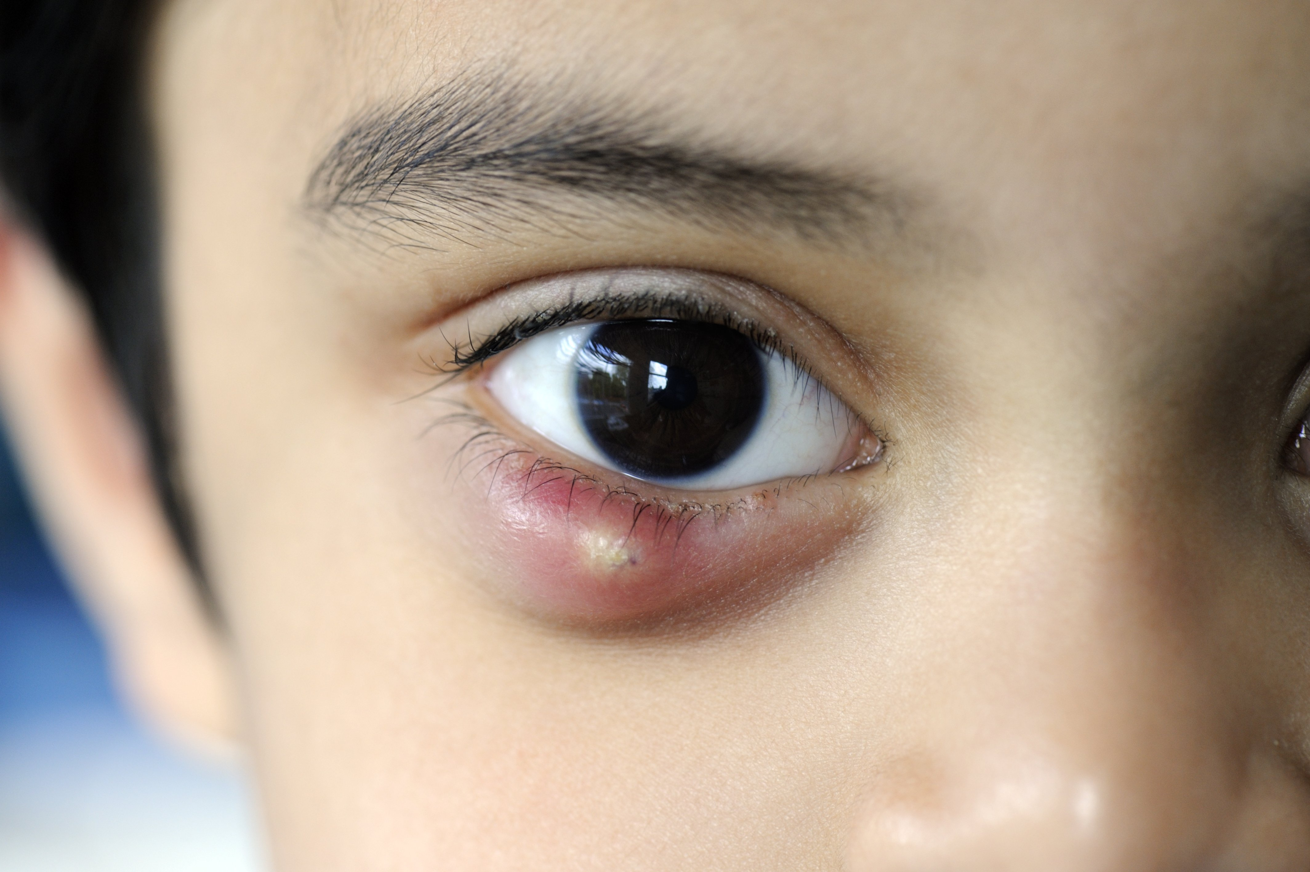 What produces a chalazion