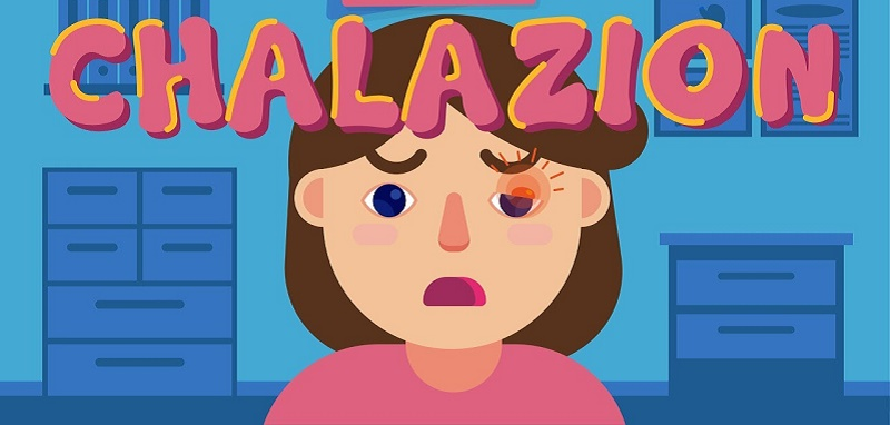 How to get rid of a chalazion? Easy and fastest way