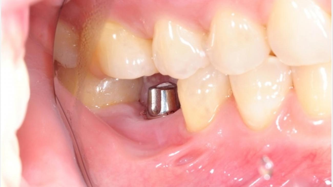 The origin of Dental Implants2
