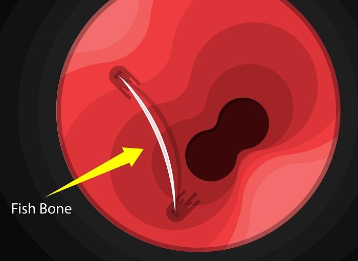 How to eliminate fish bone stuck in throat?